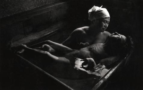 Image of a victim of Minamata disease, Tomoko Uemura in Her Bath.